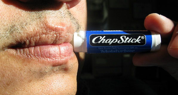 flickr chapped lips